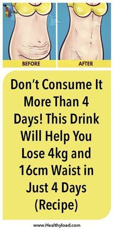 weight loss tips for obese 0607 Best Weight Loss Plan, Easy Weight Loss, Weight Loss Program, Weight Loss Transformation, Trying To Lose Weight, Losing Weight Tips, Lose Weight Naturally, Loose Weight, Reduce Weight