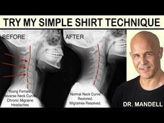 Posture Exercises, Back Pain Exercises, Neck Stretches, Home Health Remedies, Neck Pain Relief, Neck And Back Pain, Chronic Migraines, Improve Posture, Restorative Yoga