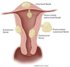 How To Treat Fibroid Pain Naturally