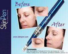 Before & After #skinpen #shewmakeplasticsurgery