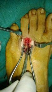 Surgery for Morton Neuroma Treatment