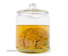 Man steals brains of dead mental patients to sell on eBay