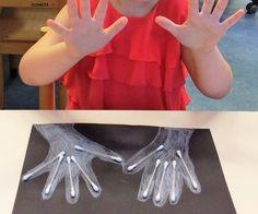 Röntgenfoto handen thema ziek zijn kleuters