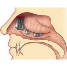 Bệnh Polyp Mũi
