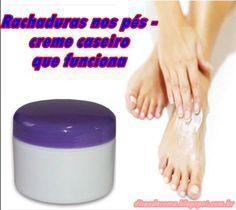 Dicas da Cema: Rachaduras nos pés - creme caseiro que funciona!