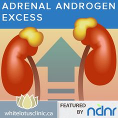PCOS ~ Treating adrenal-androgen-excess