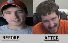 Kootra before and after too many CS:GO case openings.
