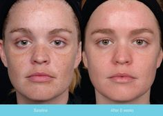 Obagi.jpg - This woman used Obagi Nu-derm and Tretinoin for 8 weeks  Left Before/ Right after 8 weeks (unretouched)  #Obagi