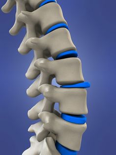 What Is A Herniated Disc? Herniated discs occur when tears in the fibrous, exterior rings of spinal vertebrate discs are severe enough to permit the [. Buldging Disc, Nerves In Back, Trapped Nerve, Exercise Without Weights, Spinal Decompression, Decompression Therapy, Intervertebral Disc, Chiropractic Clinic, Family Chiropractic