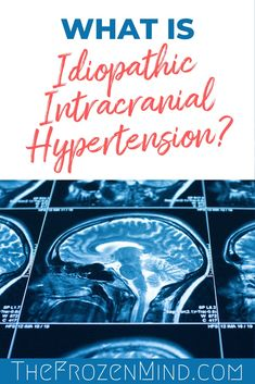 I have a new diagnosis called Idiopathic Intracranial Hypertension. Find out about this illness and what your options are. Natural Blood Pressure, Healthy Blood Pressure, Blood Pressure Remedies, Lower Blood Pressure, Chronic Illness, Chronic Pain, Fibromyalgia, Intracranial Hypertension, Pituitary Gland
