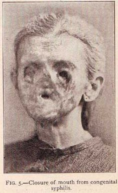 Deformities present in a young woman with syphilis. Progressed to the point of nasal caving, blindness, and mouth closure.