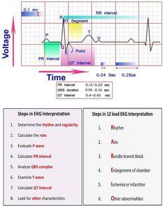 Learn ECG Interpretation 10 Steps to Learn ECG Interpretation Learning the art of ECG interpretation requires intellect, commitment,… Cardiac Nursing, Nursing Mnemonics, Nursing Cheat Sheet, Ekg Interpretation, Nursing School Notes, Nursing Schools, Lpn Schools, Nursing School Prerequisites, Critical Care Nursing