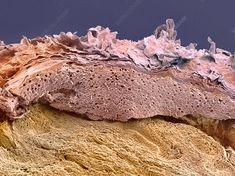 Skin, SEM - Stock Image - P710/0455 - Science Photo Library
