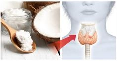 See How Coconut Oil Is Beneficial For Your Thyroid Health, Thyroid problems can present themselves in many ways You may be feel tired and sluggish Thyroid Symptoms, Thyroid Disease, Thyroid Health, Holistic Medicine, Cider Vinegar Benefits, Skin Growths, Excessive Sweating, Thyroid Problems