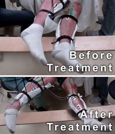 This image shows the range of voluntary movement prior to receiving stimulation compared to movement after receiving stimulation, physical conditioning, and buspirone. The subject's legs are supported so that they can move without resistance from gravity. The electrodes on the legs are used for recording muscle activity - Picture Credit Edgerton lab/UCLA
