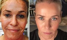 Chelsea Handler before and after. #profractional laser. It's fucking awesome and no one is paying me to tell you about it. Bam!  To answer questions: I did it on a Thursday and filmed my show on Monday. I go to Melissa Montes at honest dermatology in Encino, California. I did level 75. You can go up to level 400.