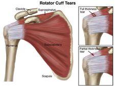 rotura parcial e completa manguito rotador