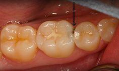 Thông thường với trường hợp răng chớm sâu thì nha sỹ sẽ tiến hành tái khoáng cho răng. Biện pháp tái khoáng phần bị sâu, dùng dung dịch gồm các chất calcium, phosphate, fluorine trám vào nơi răng chớm sâu, có khả năng thu hẹp vùng có màu trắng vôi hoặc vùng đó ngừng phát triển. Đây là phương pháp chủ yếu được áp dụng điều trị răng sâu khi chưa hình thành lỗ sâu nhằm ngăn chặn những tác động của vi khuẩn đến cấu trúc răng