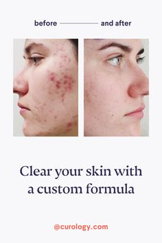 Clear skin starts here. Get your custom skincare solution for free! Collagen Bo… – Care – Skin care , beauty ideas and skin care tips How To Remove Pimples, How To Get Rid Of Acne, Pimple Scars, Acne Scars, Facial Treatment, Skin Treatments, Acne Scar Removal, Acne Remedies, Natural Remedies