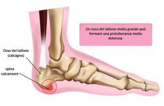 Fersensporn verursacht oft quälende Schmerzen in den Fersen, er entsteht meist … Heel spurs often cause excruciating pain in the heels, mostly due to calcification on inflamed or torn tendons. Winter Party Themes, Leg Cramps, Fitness Magazine, What Can I Do, Reflexology, Strength Training, Health Tips, Healthy Living, Physical Therapy