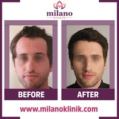 Mükemmel Sonuçlar İçin 😎📲 0090 555 016 36 00  #milanoklinik #fue #sacekimi #hairtransplant #grafts #prp #plasmatreatment #usa#deutchland #spain #espana #capilar#hairimplant #italy #saudiarabia #iraq #australia #tecnicafue #plasma #london #england #turkey #istanbul #germany#milano #rome #hairtransplantation #hairtransplant #haartransplantation #fuesaçekimi #hairtransplantationturkey