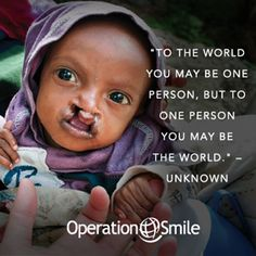 """""""To the world you may be one person, but to one person you may be the world."""" The ripple effect of your kindness is far-reaching. Together, we can #changeforever. @Operation Smile"""