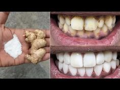 In two minutes, the white teeth whitening and globe such as pearls, this recipe / treatment at home Health And Beauty Tips, Health Tips, Teeth Care, Skin Care, Gym Workout Tips, Teeth Health, White Teeth, Teeth Cleaning, Teeth Whitening