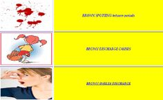 Brown discharge is most often associated with old endometrial tissues – could be remains of your last period, could be damages (by infection or other diseases) endometrial cells, could be endometrium changed by hormones, medications, pregnancy or other conditions.  For More Information Visit:- http://www.women-health-info.com/113-Brown-Discharge.html