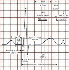 "Nerdy nurse EKG ""how-to"""