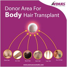 Body hair transplant follows exactly the same procedure as that of the other hair transplantation procedure but in BHT hair is extracted from the hear bearing body parts other than the donor areas at head scalp using advanced technique of FUE. This body parts may include beard, chest, back, stomach area or any other parts where hair growth is sufficient for extraction this extracted hairs are then prepared and transplanted to the bald areas of the head scalp to achieve full hair growth.