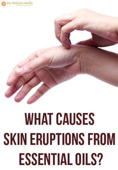 Can essential oils cause skin rash? This article is an attempt to help you figure out why you have a skin eruption after using essential oils. Get Rid Of Candida, Oils For Eczema, Yeast Infection Causes, Esential Oils, Eczema Relief, Skin Rash, Face Rash, Skin Spots, Vitamins For Skin