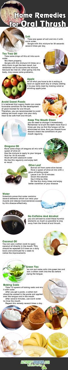 Home Remedies for Oral Thrush in Infants and Adult. Home Remedies for Oral Thrush in Infants and Adults Natural home remedies for oral thrush are simple, but effective treatment methods to help treat thrush in mouth and throat quickly at home. Oral Thrush Remedies, Cough Remedies, Herbal Remedies, Health Remedies, Oral Health, Dental Health, Health And Wellness, Thyroid Health, Health Tips