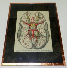 Another cool vintage anatomy print- mounted and framed, bidding starts at only $20!