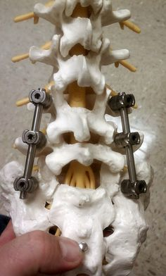 This is what my spine looks like!!!