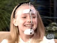 Dakota Fanning in braces showing off her Reverse Pull Headgear