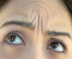 Tips to Get tid of Forehead Lines