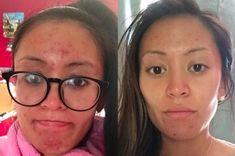 acne treatment acne treatment aloe vera acne treatment apple cider vinegar a. Acne Treatment At Home, Cystic Acne Treatment, Oily Skin Treatment, Whole30, Apple Cider, Aloe Vera, Acne Out, Best Face Mask