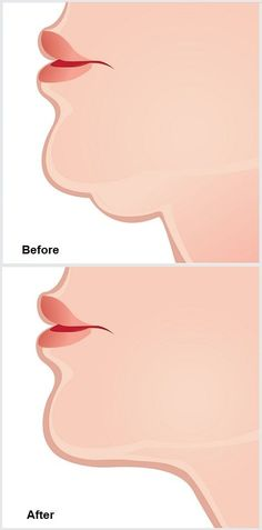 How to Get Rid of a Double Chin the Quick and Easy Way – Page 3 – WineSix