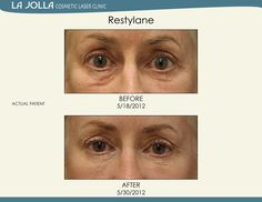 Patient treated with Restylane at La Jolla Cosmetic Laser Clinic. Under Eye Fillers, Under Eye Puffiness, Laser Clinics, Dermal Fillers, Prevent Wrinkles, Look Younger, La Jolla, Body Wash, Skin Care Tips