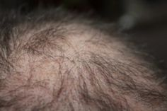 Vital Things to Know Before Going for a Hair Transplant Eggplant Benefits, Good Sources Of Iron, Hair Loss Remedies, Hair Transplant, Hair Health, About Hair, Grow Hair, Things To Know, Hair Growth