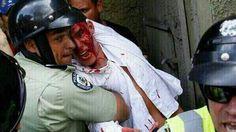 """.@Informadaniel: PNB hiere y detiene a estudiante de la #UCV  pic.twitter.com/QwXpNE1GJ6"""""""