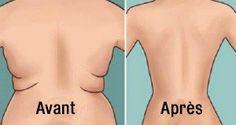 Voici comment se débarrasser de la graisse du dos facilement et rapidement chez vous !