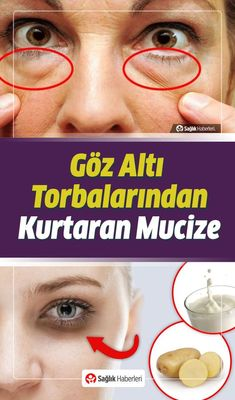 Get Rid Of Under Eye Bags With Simple And Natural Methods!- Göz Altı Torbalarından Basit ve Doğal Yöntemlerle Kurtulun! How to get rid of under-eye bags naturally, what should be done? What& good for under-eye bags? We searched for you. Underarm Hair Removal, Skin Tag Removal, Hair Removal Cream, Beauty Care, Beauty Hacks, Under Eye Bags, Unwanted Hair, Unwanted Facial, Puffy Eyes