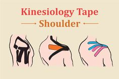 Kinesiology tape: Shoulder