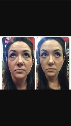 FREE FREE FREE FREE FREE FREE! Schedule your FREE demonstration of this amazing product. It's truly a miracle product that will give you results like the photo in 2-3 minutes. Check out an actual time lapsed video at the link in my bio or click here: http://samdouglas.jeunesseglobal.com/share.aspx?&v=41 This is a perfect product to use before applying make-up for that special occasion or use daily to always look your best. #instantlyageless #wrinkles #finelines  #crowsfeet #aging #flawless…