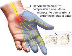 Diversos estudios han demostrado que la sintomatología del síndrome del túnel carpiano (STC) se reduce después de haber recibido terapia de masaje.