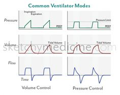 Volume control (VC) and pressure control (PC) are two common modes of positive pressure mechanical ventilation. In VC, the clinician sets the tidal volume that is given for every breath; pressure i...