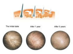 Androgenetic alopecia can also disturb women. There is great perception that pattern hair loss occurs only in men but truth is bit different as it can also affect women. In this problem women can witness some spot on the scalp without hair follicles however the other parts can be stable  and loss resistant can be used as donor site while implantation of hair follicles. Most of the women observe thinning of hair on whole head due to pattern hair loss.