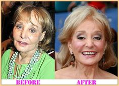 Barbara Walters Plastic Surgery Facelift Before After