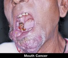 Smokeless Tobacco - Stormfront Mouth cancer